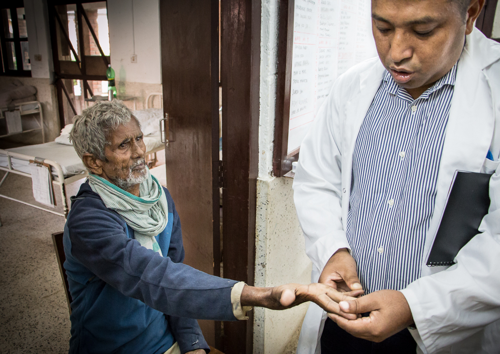 Lääkäri Krishna Lama on hoitanut leprapotilaita 22 vuotta paljain käsin. Lepra ei tartu ihokontakttissa vaan pisaratartuntana hengitysteiden välityksellä.