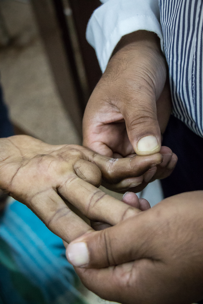 Nathuni Mandalin amputoidun sormen tynkä ei tunne kosketusta.