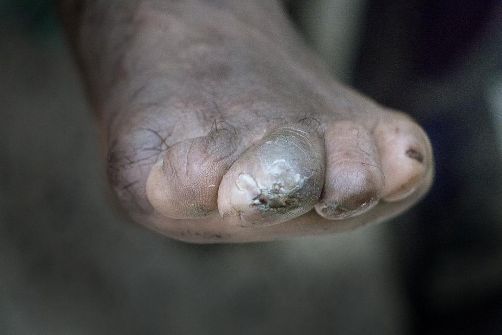 Leprosy-Nepal-1171