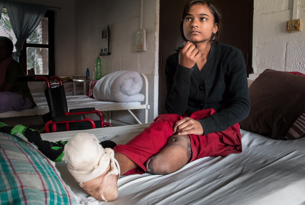 Jalkaterästä alkanut tulehdus oli viedä 12-vuotiaan Neelam Shahin hengen. Amputaatio oli ainoa vaihtoehto.