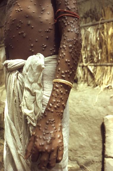 Vielä 1970-luvun alussa isorokkoon vuosittain menehtyneiden määrä oli parin miljoonan luokkaa, mutta rokotukset tepsivät. WHO julisti isorokon hävitetyksi koko maailmasta vuonna 1980. / Jean Roy 1974